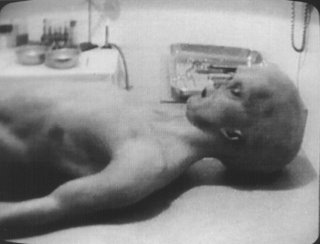 Photo of Torso From Alien Autopsy